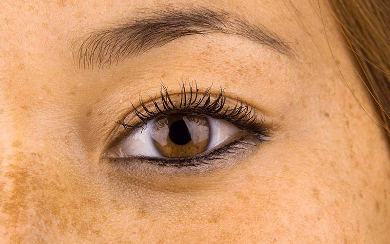 Laserowe_leczenie_przebarwien_twarzy_w