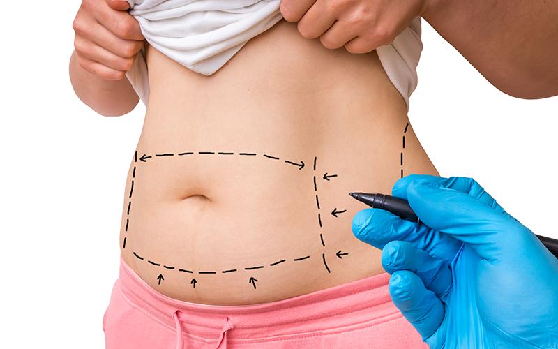 Liposukcja-laserowa-Cellulaz-Smartlipo-Triplex