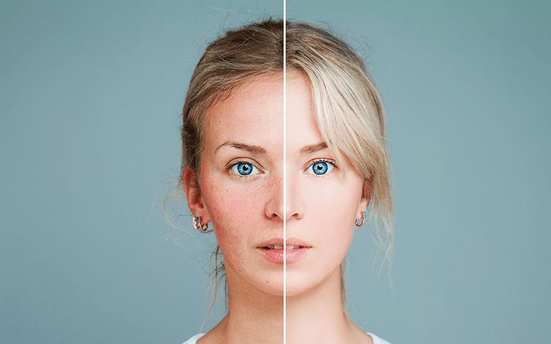laserowe-leczenie-rumienia-i-naczynek-twarzy-w