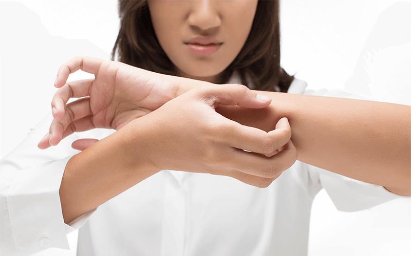 atopowe zapalenie skóry (1)