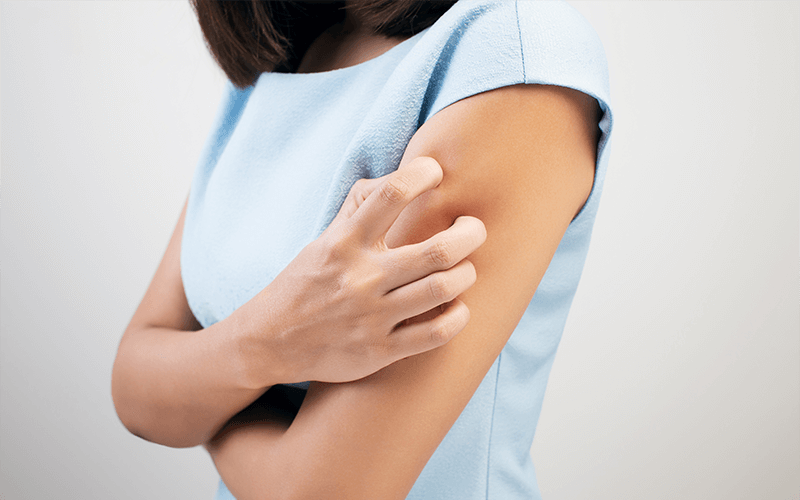 pozajelitowa skórna choroba